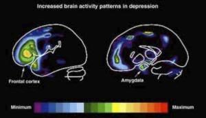 La modification pathologique de l'activité cérébrale peut être rectifiée par la stimulation magnétique