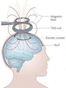 Principe d'activation des neurones par rTMS