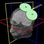 MRI-Navigierte Magnetstimulation